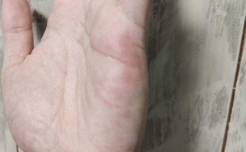 手に霜焼けのような真っ赤な痒みが